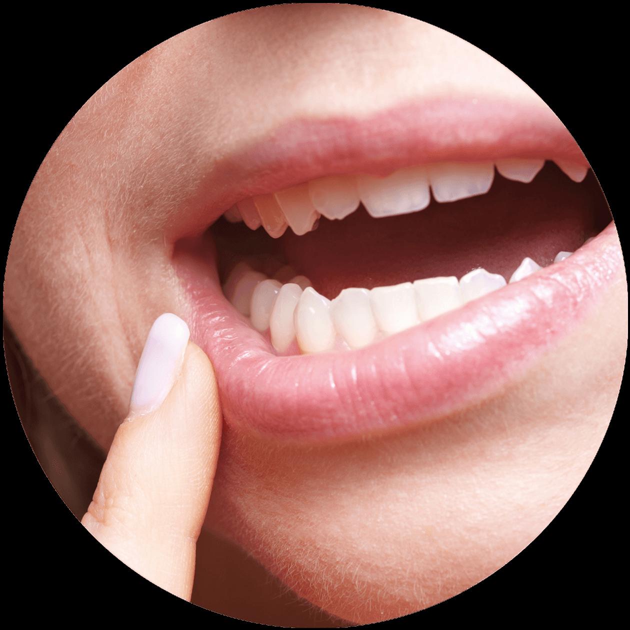 Dr. Vera Leisentritt - Zahngesundheit - Zahnfleisch