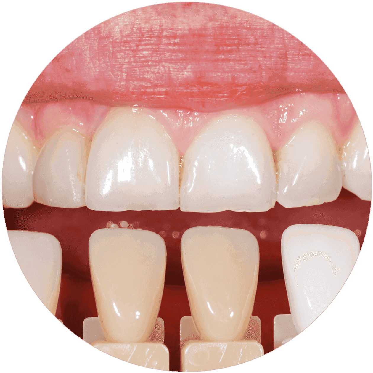 Dr. Vera Leisentritt - Zahnerhaltung - Material